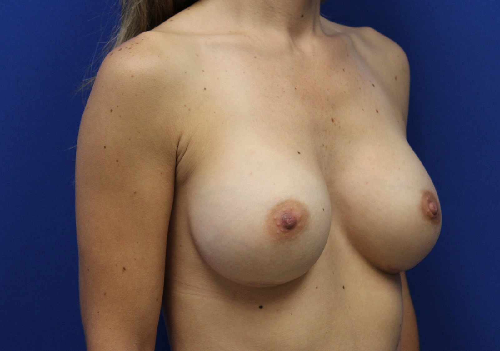 Breasts, By Florence Williams